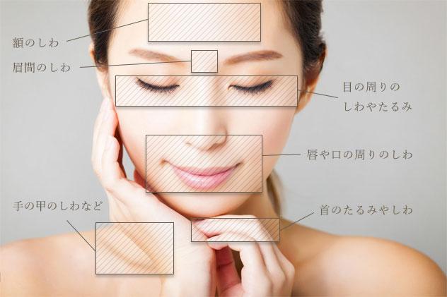 W-PRP皮膚再生療法の適応部位